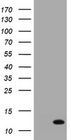 HEK293T cells were transfected with the pCMV6-ENTRY control (Left lane) or pCMV6-ENTRY S100A6 (Right lane) cDNA for 48 hrs and lysed. Equivalent amounts of cell lysates (5 ug per lane) were separated by SDS-PAGE and immunoblotted with anti-S100A6.
