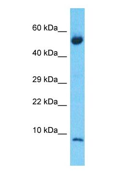 Western blot of S10A6 Antibody with human Lung Tumor lysate.  This image was taken for the unconjugated form of this product. Other forms have not been tested.