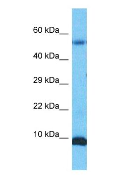 Western blot of S10A6 Antibody with human Stomach Tumor lysate.  This image was taken for the unconjugated form of this product. Other forms have not been tested.