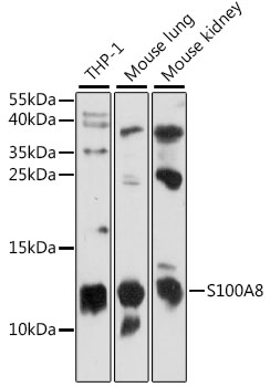 S100A8 / MRP8 Antibody - Western blot analysis of extracts of various cell lines, using S100A8 antibody at 1:1000 dilution. The secondary antibody used was an HRP Goat Anti-Rabbit IgG (H+L) at 1:10000 dilution. Lysates were loaded 25ug per lane and 3% nonfat dry milk in TBST was used for blocking. An ECL Kit was used for detection and the exposure time was 90s.