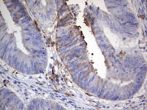 IHC of paraffin-embedded Adenocarcinoma of Human colon tissue using anti-S100A9 mouse monoclonal antibody. (Heat-induced epitope retrieval by 1 mM EDTA in 10mM Tris, pH8.5, 120°C for 3min).