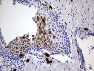 IHC of paraffin-embedded Carcinoma of Human prostate tissue using anti-S100A9 mouse monoclonal antibody. (Heat-induced epitope retrieval by 1 mM EDTA in 10mM Tris, pH8.5, 120°C for 3min).