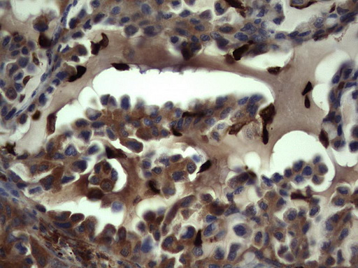 IHC of paraffin-embedded Carcinoma of Human lung tissue using anti-S100A9 mouse monoclonal antibody. (Heat-induced epitope retrieval by 1 mM EDTA in 10mM Tris, pH8.5, 120°C for 3min).