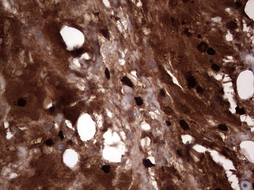 IHC of paraffin-embedded Adenocarcinoma of Human ovary tissue using anti-S100A9 mouse monoclonal antibody. (Heat-induced epitope retrieval by 1 mM EDTA in 10mM Tris, pH8.5, 120°C for 3min).