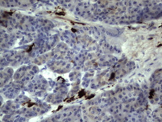 IHC of paraffin-embedded Human pancreas tissue using anti-S100A9 mouse monoclonal antibody. (Heat-induced epitope retrieval by 1 mM EDTA in 10mM Tris, pH8.5, 120°C for 3min).