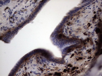 IHC of paraffin-embedded Carcinoma of Human pancreas tissue using anti-S100A9 mouse monoclonal antibody. (Heat-induced epitope retrieval by 1 mM EDTA in 10mM Tris, pH8.5, 120°C for 3min).