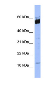 S100A9 / MRP14 antibody Western blot of HeLa lysate. This image was taken for the unconjugated form of this product. Other forms have not been tested.