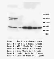 S100B / S100 Beta Antibody -  This image was taken for the unconjugated form of this product. Other forms have not been tested.