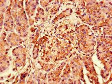 S26 / RPS26 Antibody - Immunohistochemistry of paraffin-embedded human pancreatic tissue using RPS26 Antibody at dilution of 1:100