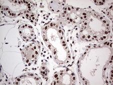 SAE1 Antibody - Immunohistochemical staining of paraffin-embedded Human breast tissue within the normal limits using anti-SAE1 mouse monoclonal antibody. (Heat-induced epitope retrieval by 1 mM EDTA in 10mM Tris, pH8.5, 120C for 3min,