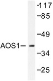 SAE1 Antibody - Western blot of AOS1 (L247) pAb in extracts from 293 cells.