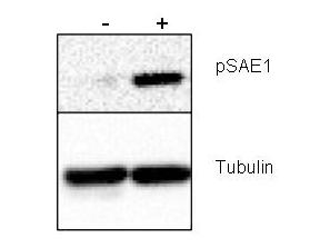 SAE1 Antibody - Anti-SAE1 pS185 Antibody - Western Blot. Western blot of Rabbit anti-SAE1 pS185 antibody shows detection of phosphorylated SAE1. Left lane (-) contains 20 ug human HeLa whole cell protein. Right lane (+) contains 20 ug human HeLa whole cell protein from cells pre-treated with phosphatase inhibitor cocktail to prevent dephosphorylation of the target. Proteins were separated on a 10% SDS-PAGE and transferred onto nitrocellulose. After blocking with 5% milk-TBST 1 hr at room temperature, the membrane was probed with the primary antibody diluted to 1:1000 at room temperature for 3 hr followed by washes and reaction with HRP-conjugated secondary and ECL imaging. Personal communication, Xin-Hua Feng, Baylor College of Medicine, Houstin, TX.