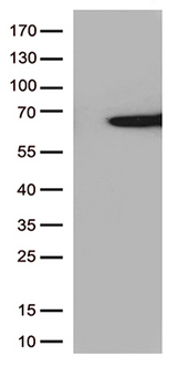 SAG / Arrestin Antibody - HEK293T cells were transfected with the pCMV6-ENTRY control. (Left lane) or pCMV6-ENTRY SAG. (Right lane) cDNA for 48 hrs and lysed. Equivalent amounts of cell lysates. (5 ug per lane) were separated by SDS-PAGE and immunoblotted with anti-SAG. (1:500)