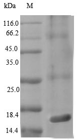 prgJ Protein - (Tris-Glycine gel) Discontinuous SDS-PAGE (reduced) with 5% enrichment gel and 15% separation gel.
