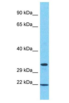 SAMD10 Antibody - SAMD10 antibody Western Blot of 786-0. Antibody dilution: 1 ug/ml.  This image was taken for the unconjugated form of this product. Other forms have not been tested.