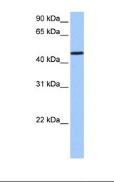 SAMD14 Antibody - Jurkat cell lysate. Antibody concentration: 1.0 ug/ml. Gel concentration: 12%.  This image was taken for the unconjugated form of this product. Other forms have not been tested.