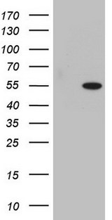 SAP30BP / HTRG Antibody - HEK293T cells were transfected with the pCMV6-ENTRY control (Left lane) or pCMV6-ENTRY SAP30BP (Right lane) cDNA for 48 hrs and lysed. Equivalent amounts of cell lysates (5 ug per lane) were separated by SDS-PAGE and immunoblotted with anti-SAP30BP.