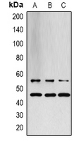 SAPK / JNK / MAPK8 + MAPK9 + MAPK10 Antibody - Western blot analysis of JNK1/2/3 expression in LOVO (A); PC12 (B); rat muscle (C) whole cell lysates.
