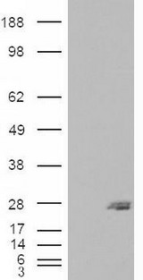 HEK293 overexpressing SAR1B (RC210593) and probed with (mock transfection in first lane).
