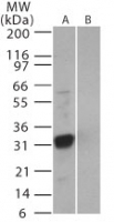 Western blot of SARS-3b in (A) recombinant fusion protein containing amino acids 31-45 and (B) fusion partner without these amino acids, using antibody at 0.5 ug/ml.