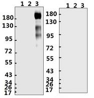 SARS-CoV-2 Spike Glycoprotein Antibody - Western Blot of SARS-CoV-2 Spike Glycoprotein and Negative Control - Lane 1: SARS-CoV-2 Nucleoprotein - Lane 2: S-Glycoprotein Receptor Binding Domain - Lane 3: S-Glycoprotein Extra Cellular Domain