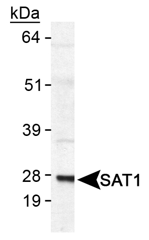 Detection of SAT1 in human SAT1 transfected lysate.  This image was taken for the unconjugated form of this product. Other forms have not been tested.