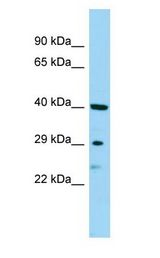 SBSN antibody Western Blot of Jurkat.  This image was taken for the unconjugated form of this product. Other forms have not been tested.