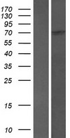 SCAI Protein - Western validation with an anti-DDK antibody * L: Control HEK293 lysate R: Over-expression lysate