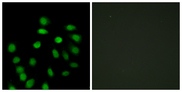 Immunofluorescence analysis of HepG2 cells, using SCAND1 Antibody. The picture on the right is blocked with the synthesized peptide.