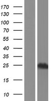SCAND1 Protein - Western validation with an anti-DDK antibody * L: Control HEK293 lysate R: Over-expression lysate