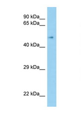 SCARB1 / SR-BI antibody Western blot of Fetal Kidney lysate. Antibody concentration 1 ug/ml.  This image was taken for the unconjugated form of this product. Other forms have not been tested.