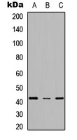 SCD1 / SCD Antibody - Western blot analysis of SCD expression in HeLa (A); NS-1 (B); PC12 (C) whole cell lysates.