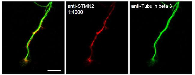 STMN2 Antibody - Staining of STMN2 in primary mouse dorsal root ganglia neurons. Shows the expected staining of endogenous STMN2 in axons and growth cones. Tubulin is a marker of axons. Antibody was used at a dilution of 1:4000.