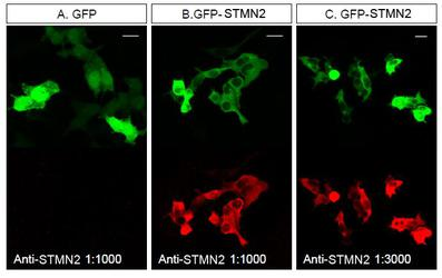 SCG10 / STMN2 Antibody - STMN2 Antibody - Staining of STMN2 in HEK293T cells transfected with GFP or a GFP-STMN2 fusion. Antibody was used at a dilution of 1:1000 (A, B) and 1:3000 (C).