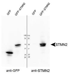 STMN2 Antibody - Western blot of STMN2 in HEK293T cells transfected with GFP or a GFP-STMN2 fusion. Antibody was used at a dilution of 1:4000.