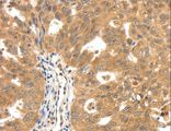 Immunohistochemistry of paraffin-embedded Human ovarian cancer using SCN5A Polyclonal Antibody at dilution of 1:30.