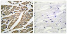 SCN5A / Nav1.5 Antibody - Peptide - + Immunohistochemical analysis of paraffin-embedded human heart tissue using Sodium Channel-pan antibody.