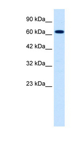 SCNN1B antibody LS-B999 Western blot of Jurkat lysate.  This image was taken for the unconjugated form of this product. Other forms have not been tested.