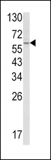 SCP2 / SCPX Antibody - Western blot of SCP2 Antibody in A2058 cell line lysates (35 ug/lane). SCP2 (arrow) was detected using the purified antibody.