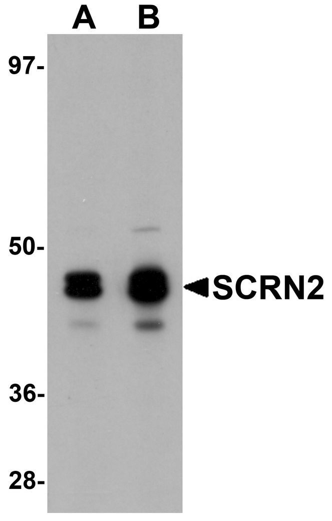 Western blot analysis of SCRN2 in 293 cell tissue lysate with SCRN2 antibody at (A) 0.5 and (B) 1 ug/ml.