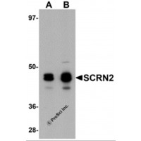 Western blot analysis of SCRN2 in 293 cell tissue lysate with SCRN2 antibody at (A) 0.5 and (B) 1 µg/mL.
