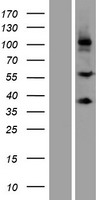 SCUBE3 Protein - Western validation with an anti-DDK antibody * L: Control HEK293 lysate R: Over-expression lysate