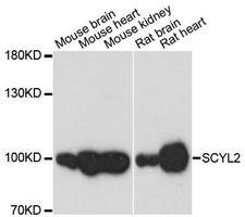 SCYL2 Antibody - Western blot analysis of extracts of various cell lines, using SCYL2 antibody at 1:3000 dilution. The secondary antibody used was an HRP Goat Anti-Rabbit IgG (H+L) at 1:10000 dilution. Lysates were loaded 25ug per lane and 3% nonfat dry milk in TBST was used for blocking. An ECL Kit was used for detection and the exposure time was 30s.