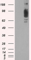 HEK293T cells were transfected with the pCMV6-ENTRY control (Left lane) or pCMV6-ENTRY SCYL3 (Right lane) cDNA for 48 hrs and lysed. Equivalent amounts of cell lysates (5 ug per lane) were separated by SDS-PAGE and immunoblotted with anti-SCYL3.