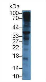 SDC1 / Syndecan 1 / CD138 Antibody - Western Blot; Sample: Mouse Liver lysate; Primary Ab: 12µg/mL Rabbit Anti-Mouse SDC1 Antibody Second Ab: 0.2µg/mL HRP-Linked Caprine Anti-Rabbit IgG Polyclonal Antibody
