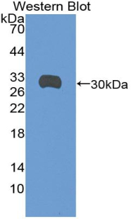 SDC1 / Syndecan 1 / CD138 Antibody - Western blot of recombinant SDC1 / Syndecan 1 / CD138.