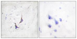 IHC of paraffin-embedded human brain tissue, using Syndecan4 (Ab-179) Antibody. The picture on the right is treated with the synthesized peptide.
