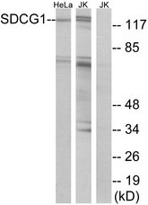 Western blot analysis of lysates from HeLa and Jurkat cells, using SDCG1 Antibody. The lane on the right is blocked with the synthesized peptide.