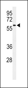 SDR / SDPR Antibody - Western blot of SDR Antibody in CHO cell line lysates (35 ug/lane). SDR (arrow) was detected using the purified antibody.