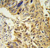 SDR / SDPR Antibody - SDR Antibody IHC of formalin-fixed and paraffin-embedded lung carcinoma followed by peroxidase-conjugated secondary antibody and DAB staining.